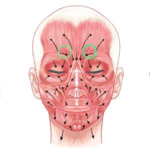 Anatomie Zornesfalte