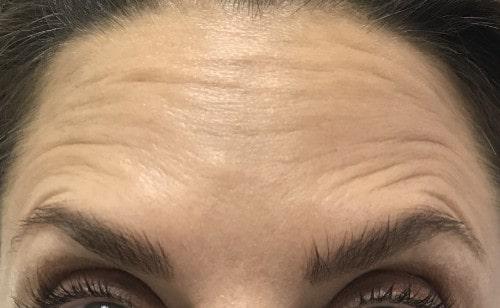 Botox gegen Stirnfalten: Wenn es die Mimik erfordert, dann kann die Stirn nach wie vor in Falten gelegt werden