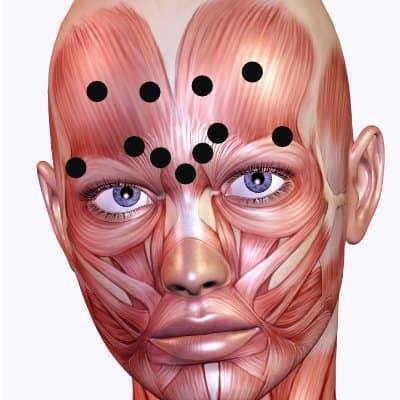 botox stirnfalten - glabella - augenbrauen