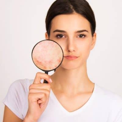 Botulinumtoxin gegen unreine Haut und große Poren