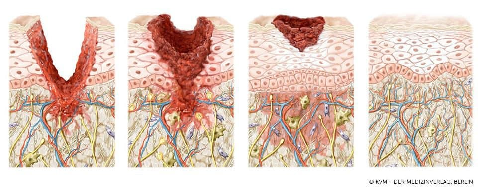 LIPS and SKIN Graphik: Wundheilung ablativer Verfahren
