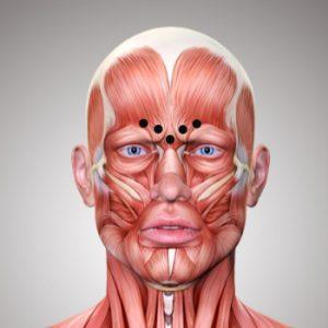 Botox gegen Zornesfalte
