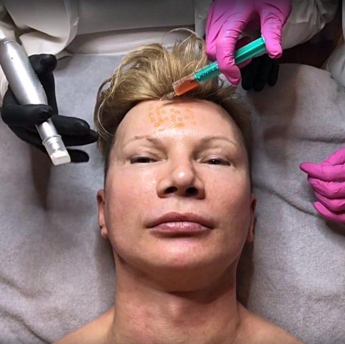 Vampir Lifting mit Chris Kolonko bei LIPS and SKIN Ästhetische Medizin München