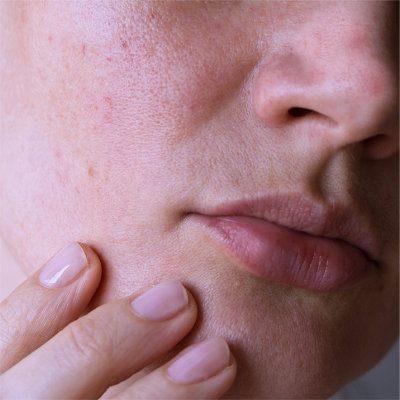 Micro-Botox gegen große Poren und fettige Haut - LIPS and SKIN Ästhetische Medizin München