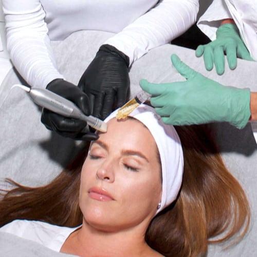 PRP Eigenblut Behandlung durch Dr. Strobl von LIPS and SKIN Ästhetische Medizin München