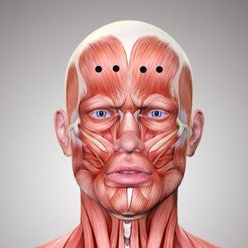 BOTOX gegen Stirnfalten