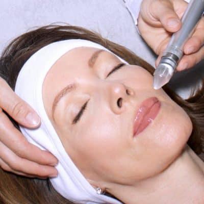 Microdermabrasion bei LIPS and SKIN Ästhetische Medizin