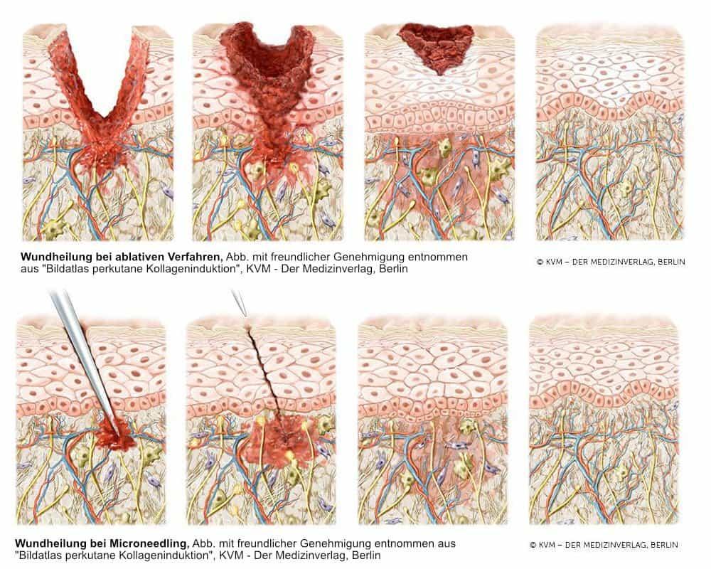 LIPS and SKIN Graphik: Wundheilung bei ablativen Verfahren vs Microneedling