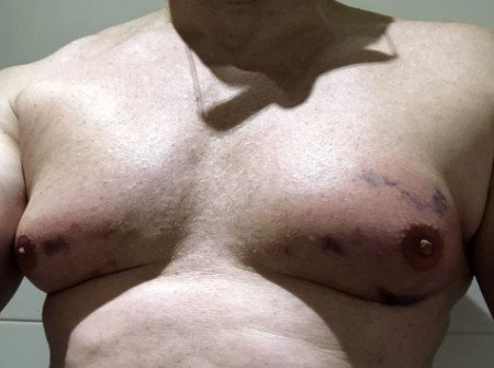 Behandlung der Männerbrust (Lipomastie) mit der Fett weg Spritze