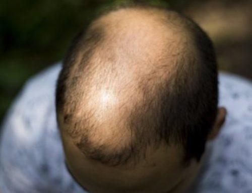 PRP als Mittel gegen Haarausfall
