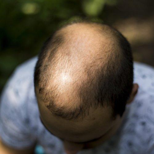 PRP bei Haarausfall