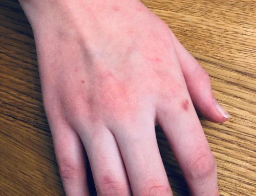 Allergisches Kontaktekzem und COVID19
