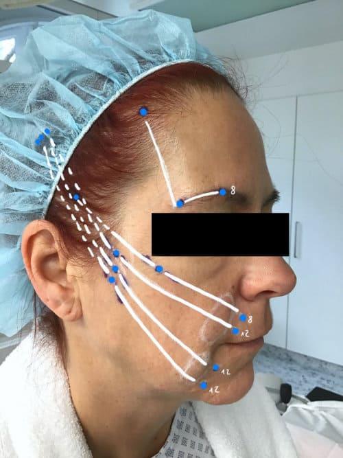 SILHOUETTE SOFT Fadenlifting - Wangen und Augenbrauen
