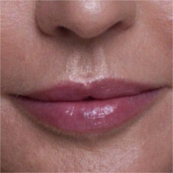 Philtrum - Lips and Skin Ästhetische Medizin